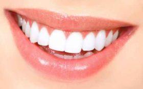 როგორ გავითეთროთ კბილები