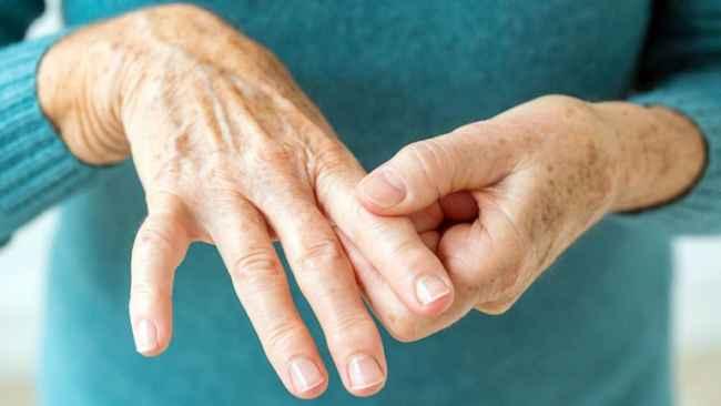 ამერიკელმა მეცნიერებმა ართრიტის მკურნალობის მეთოდს მიაგნეს