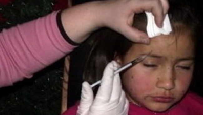 """დედა 8 წლის შვილს ბოტოქსს საკუთარი ხელით უკეთებდა - ,,საბავშვო სილამაზის კონკურსებისთვის შვილებს სოლარიუმებში ამწყვდევენ, ხელოვნურ კბილებს უსვამენ..."""""""