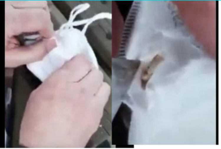 პირბადეში მატლები აღმოაჩინეს - გამაოგნებელი ვიდეო